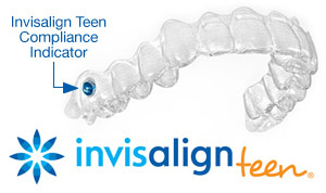 Invisalign teen treatment