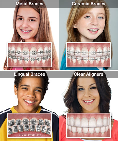 braces in colorado springs