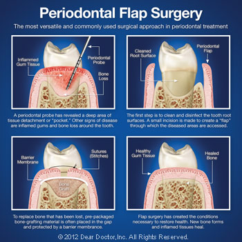 Periodontal flap surgery.
