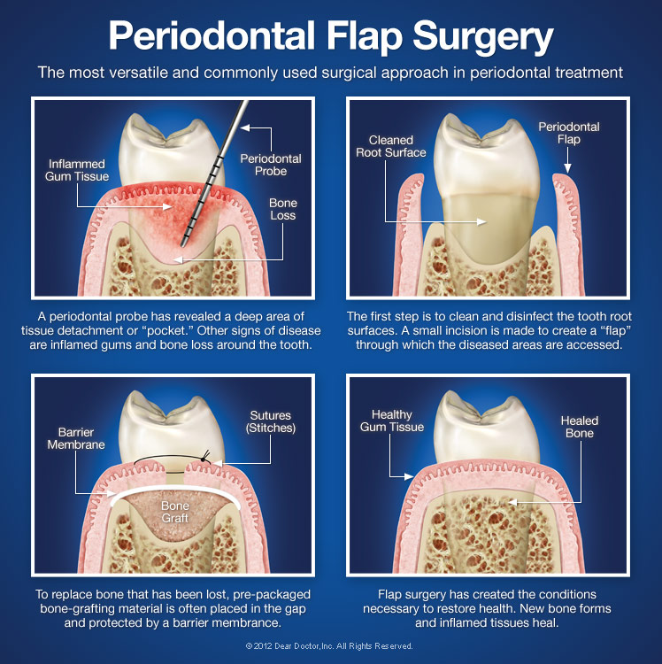 Periodontal Flap Surgery Dentist Gillette Wy Dental