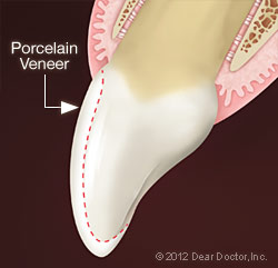Porcelain Veneer Diagram - Farmington Veneers