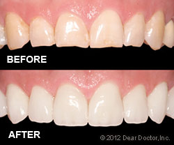 dental veneers - before and after