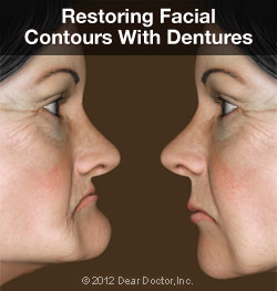 Normal facial contours restored with dentures.