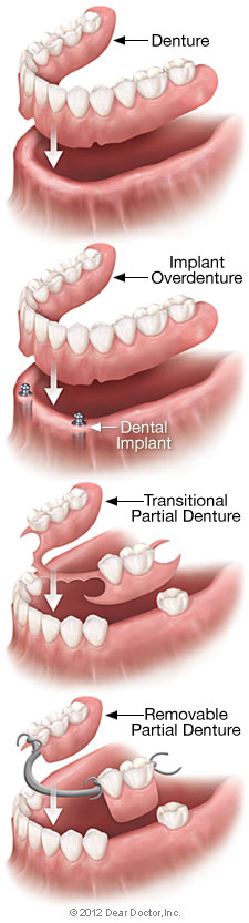 Removable denture types