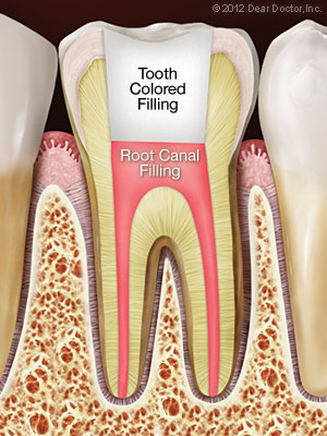 Tooth after root canal procedure