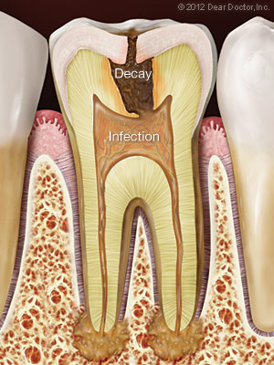 Decayed tooth with infection needing root canal treatment | Charlotte, NC Dentist