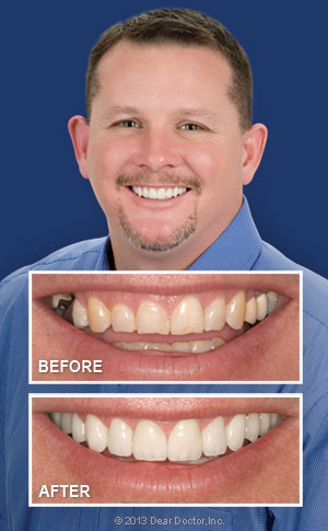 Before and After cosmetic dentistry