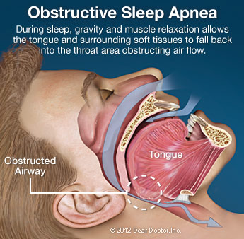 Sleep Apnea Obstructive Leawood KS
