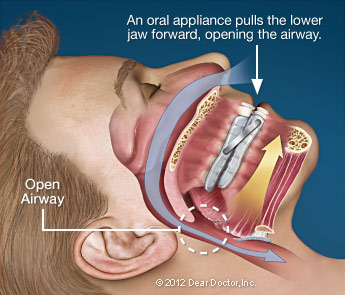 Oral Sleep Apnea Appliance Therapy