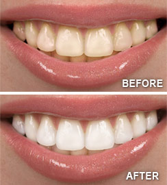 Wilmington Teeth Whitening Before and After.