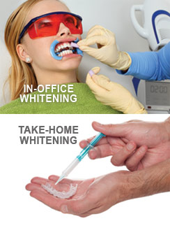 Teeth Whitening Treatment Options
