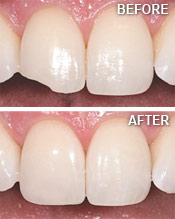 chipped tooth bonding service in colorado springs