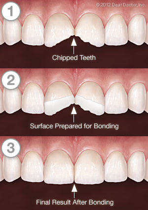 tooth-bonding-series Bonding