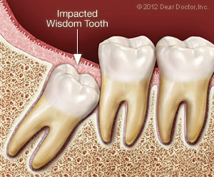 Tooth Extraction in Garland, TX