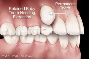 Retained baby tooth needing extraction.