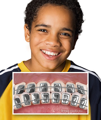 Lingual Braces in Bloomfield, MI and Detroit, MI