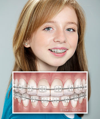 Ceramic Braces in Ashland