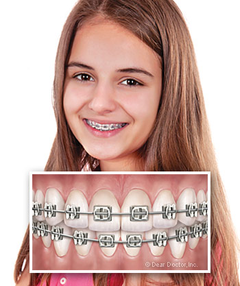 Traditional Metal Braces in Ashland