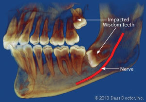 X-ray of an impacted wisdom tooth.